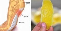 Voici comment utiliser la peau du citron pour supprimer vos douleurs articulaire !