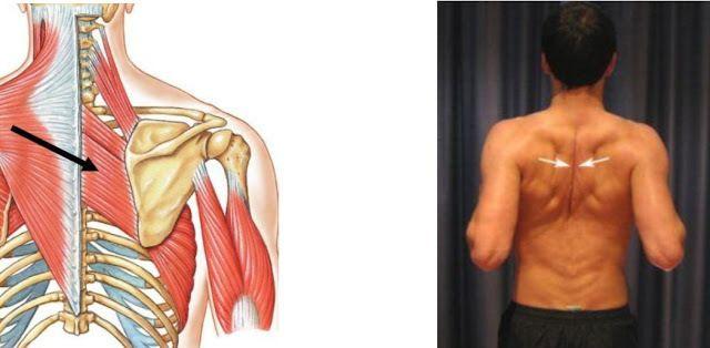 Сегодня мы поговорим про ромбовидную мышцу, которая играет ключевую роль в сохранении прямой спины, разберем упражнения по растяжке и укреплению ромбовидной мышцы. Анатомия. Ромбовидная мышца располагается под трапецией и соединяет лопатку с позвонками верхней части спины. Совместно со средними волокнами трапециевидной мышцы, ромбовидная мышца соединяет лопатки. Она также поднимает лопатку наряду с мышцей, поднимающей лопатку. […]