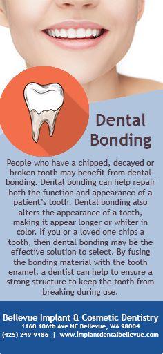 People who chipped, decayed or broken teeth may benefit from dental bonding #DentalBonding #Dentist