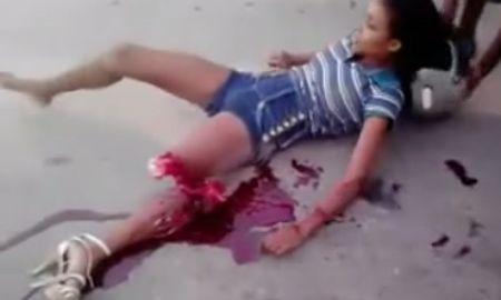 Imágenes impactantes muestran una mujer con la pierna seccionada tras un accidente http://www.feedviral.com/8/145/imagenes-impactantes-muestran-mujer-pierna-seccionada-tras-accidente.html