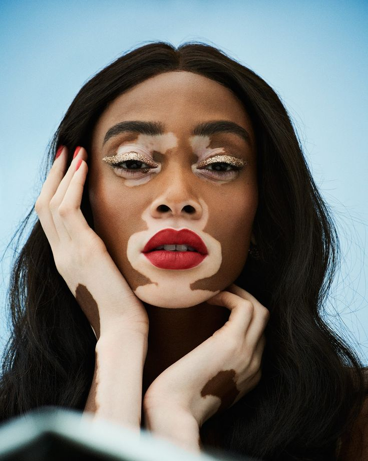 Winnie Harlow photographed by Jason Hetherington for Grazia UK June 2018 Stylist: Joely Walker Hair: Jennifer Yepez Makeup: Naoko Scintu Portrait Inspiration, Mode Inspiration, Vitiligo Model, Pretty People, Beautiful People, Winnie Harlow, Beautiful Black Women, Drawing People, Cellulite
