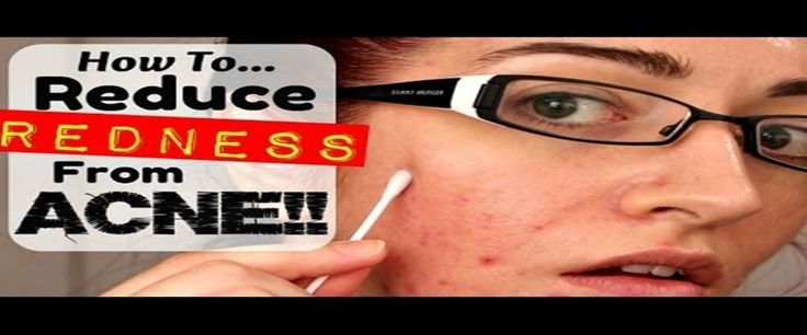 Get rid of red acne marks 5 best tips with images