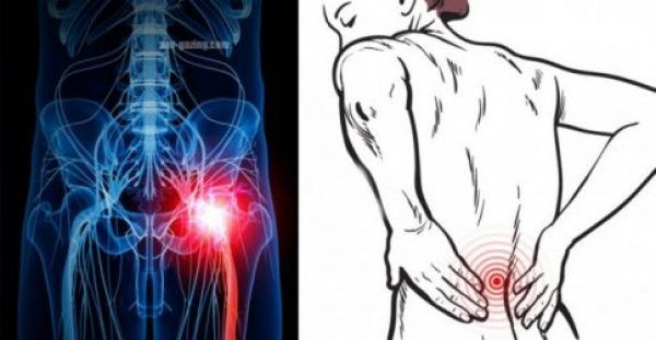 Ο πόνος που περιλαμβάνει το ισχιακό νεύρο, το οποίο ξεκινά από την μέση και φτάνει στα πόδια, είναι γνωστός ως ισχιαλγία. Ωστόσο, όπως θα δείτε στο παρακάτ