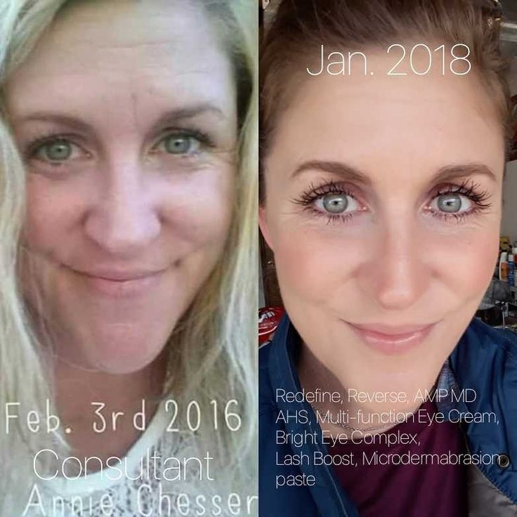 This is why I love Rodan and Fields! My personal results! #lifechangingskincare achesser.myrandf.com Find out what regimen is perfect for you by taking the solution tool. Check out my website!