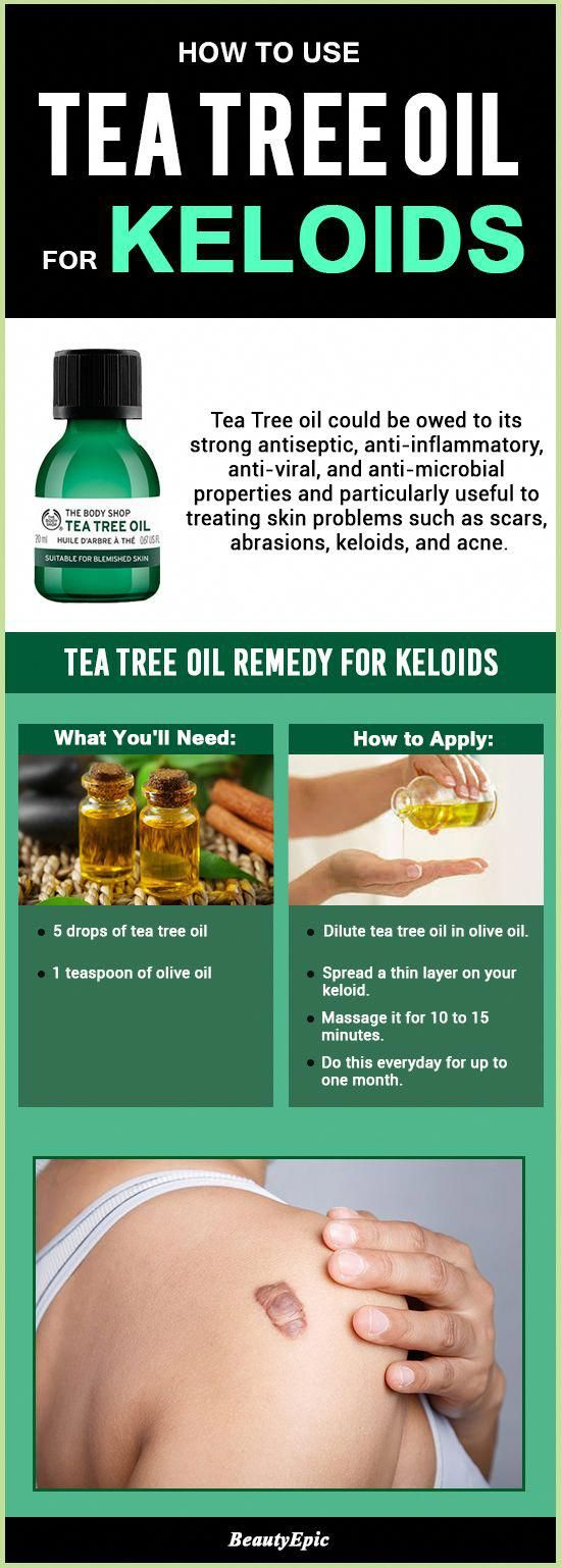 How To Use Tea Tree Oil For Keloids #BenefitsOfcoconutoil