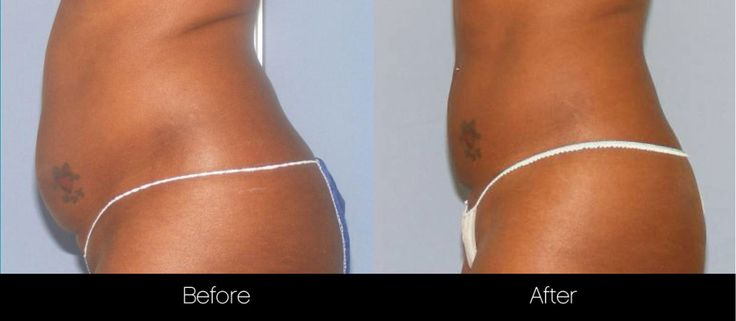 Before and after photo of a Toronto patient who underwent laser liposuction treatments at SpaMedica #NonSurgicalLiposuction #LaserLipo #Zerona #Toronto www.spamedica.com