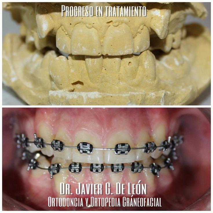 "24 Me gusta, 1 comentarios - ⠀⠀⠀⠀⠀⠀⠀⠀⠀⠀⠀⠀⠀⠀⠀⠀Javier (@javigarciadeleon) en Instagram: ""Avances en 3 meses de Tratamiento #dentistrylife #ortodonciamonterrey #Orthodontics #work Cuídate…"""