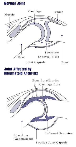 Learn more from WebMD about types of juvenile rheumatoid arthritis, also called juvenile idiopathic arthritis.