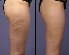 Cellulite before and after