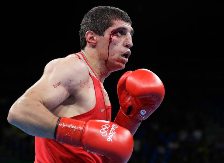 Armenia's Vladimir Margaryan bleeds from a cut as