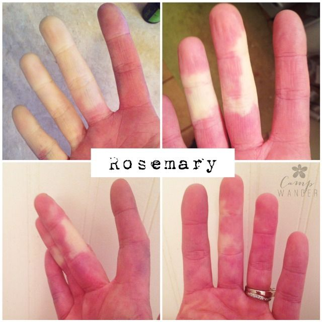 Raynauds and exposure to cold weather are no match for topical application of 4 drops pure Rosemary essential oil and 1/4 tsp carrier oil.