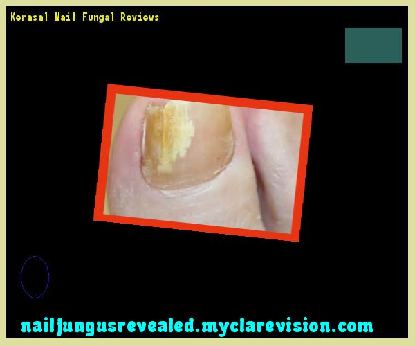 Kerasal Nail Fungal Reviews Nail Fungus Remedy You Have Nothing