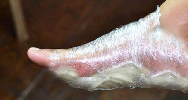 Možná se vám to zdá divné, že přikládání plátků cibule na chodidla dokáže vyléčit mnohá onemocnění. Jedná se o velmi oblíbený přírodní lék již od 16. století. // Velmi dobře funguje! Co dokážou vyléčit cibulové obklady na chodidlech? několiktěch nejdůležitějších: - snižování horečky