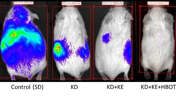 Ketogenic Diet Doubles Cancer Survival In Mice When Combined With Ketone Supplements