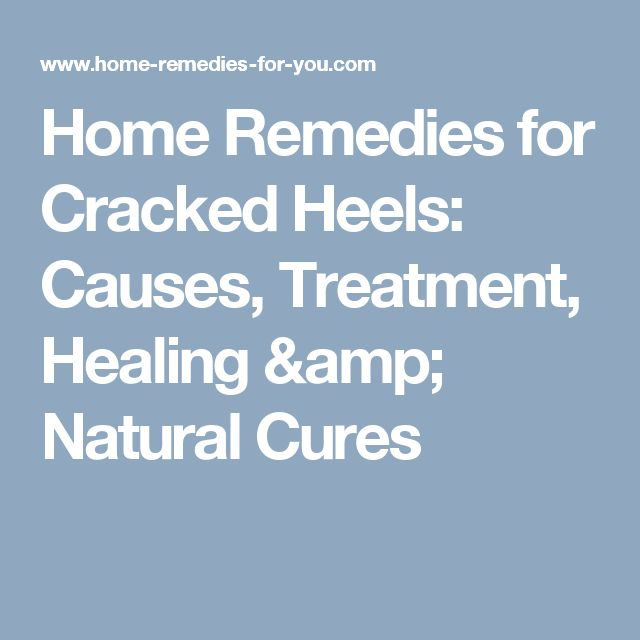 Home Remedies for Cracked Heels: Causes, Treatment, Healing & Natural Cures