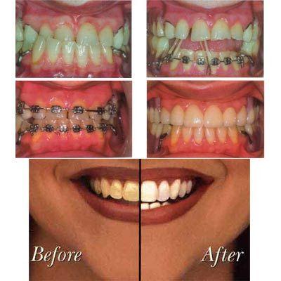 texas teeth whitening laser texas teeth whitening whitening teeth ... . http://www.ultrasonictoothbrush.org