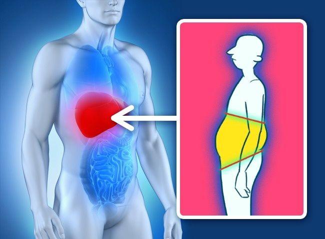 4 неочевидные причины лишнего веса, которые не связаны с питанием