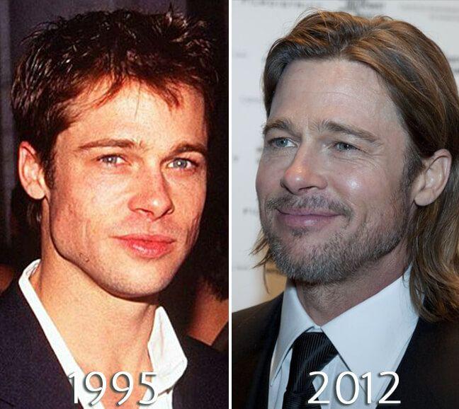 Brad Pitt plastic surgery photo