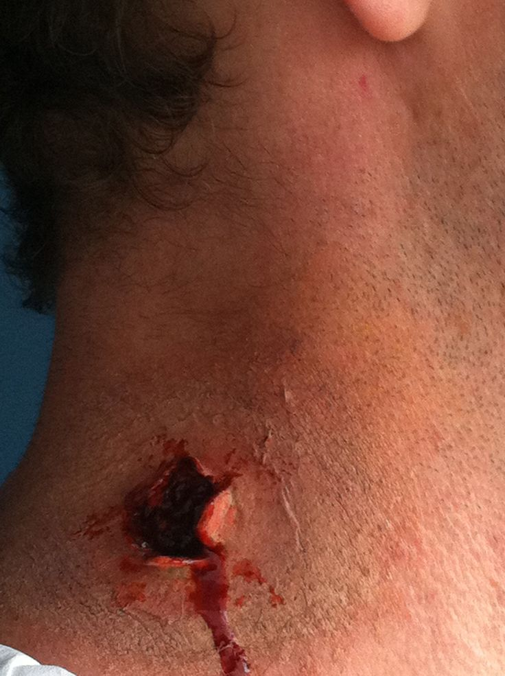 First prosthetic application. Bullet wound.