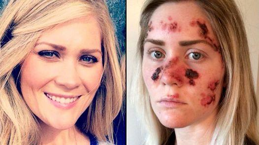 Una enfermera estadounidense publicó una imagen en Facebook con las marcas que el tratamiento por la enfermedad le dejó en su rostro. Quiere concientizar sobre por qué no hay que recurrir al bronceado artificial.