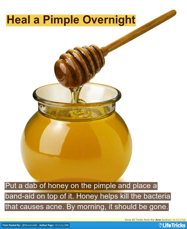 Acne - Heal a Pimple Overnight