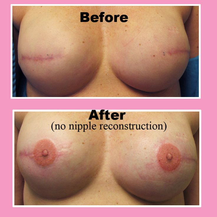 Tattoos for breast reconstruction. 3-D nipples! Awesome!