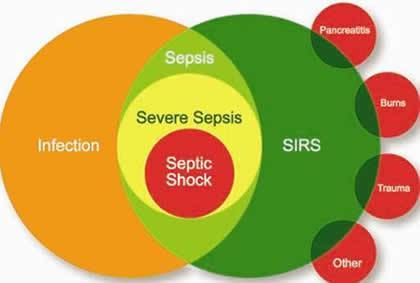 The Third International Consensus Definitions for Sepsis and Septic Shock – Blogging For Your Noggin