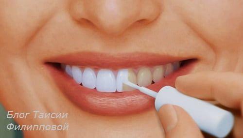 Отбеливание зубов - какое самое безопасное и эффективное?