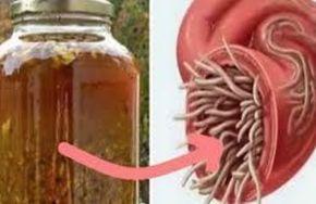 L'antibiotique naturel le plus puissant il guérit toute infection dans le corps et tue des parasites!