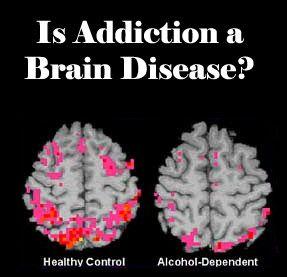 Steady drug use destroys the brain. Drug rehab rebuilds it.