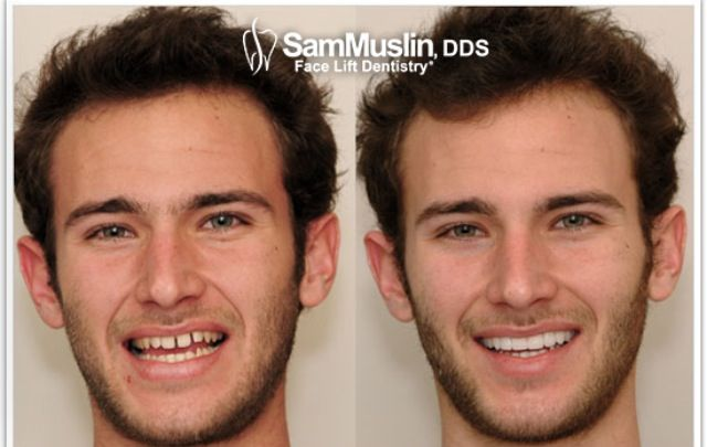 Fake Be Teeth Can Whitened
