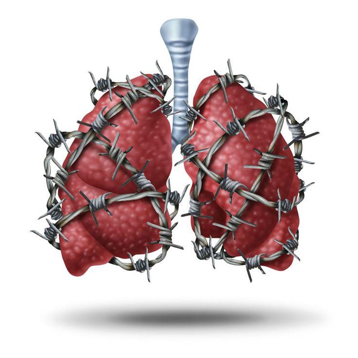 Trata la tos y elimina el moco de los pulmones con este remedio casero. Funciona muy bien para los niños