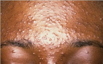 Say goodbye to acne forever by following these 5 steps every woman must do to have a clear skin in 30 days