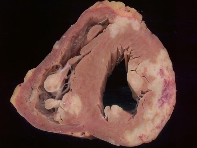 70 best Sarcoidosis images on Pinterest | Chronic illness ...