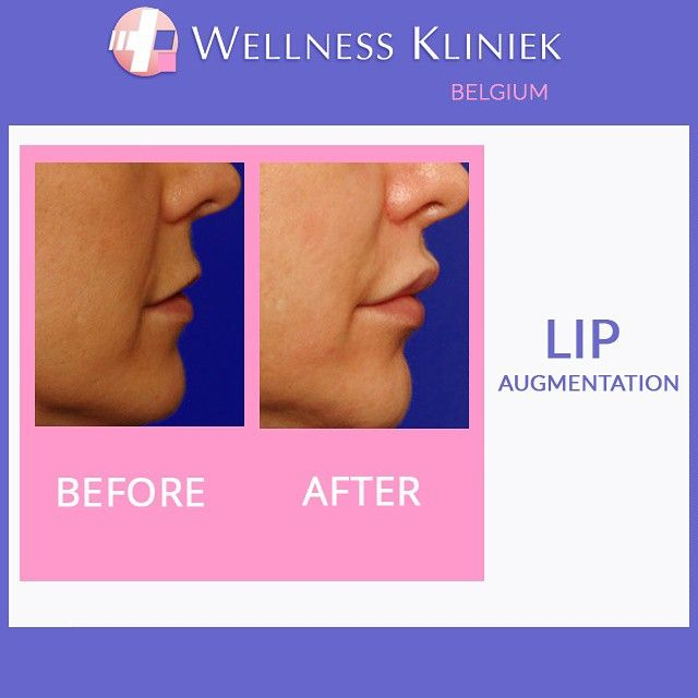 Plastic surgery before and after - Wellness_kliniek Belgium Lip augmentation: Surf to the #wellnesskliniek in #belgium for lots of info, before and after photos, best prices to: http://www.wellnesskliniek.com/en/plastic-surgery/lips/pictures. Get all the required details on #lip_enhancement, #lip_plasty, #lip_plumper, #fillers, #lips, #lip_correction, #cosmeticsurgery, #before_and_after_photos, #cost, #plasticsurgery.