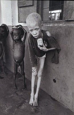 An albino, near death, in Biafra, Africa