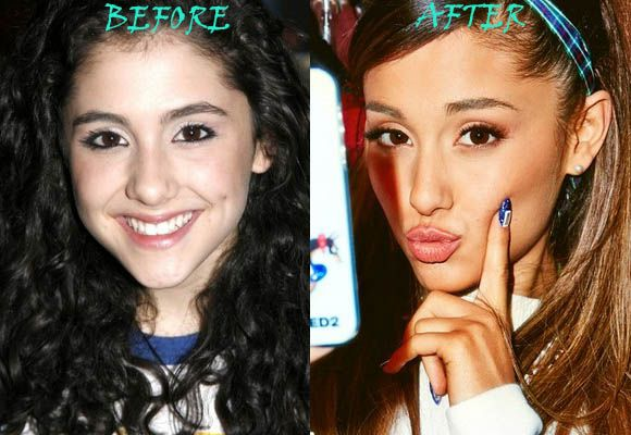 Ariana Grande Plastic Surgery Before and After Nose Job