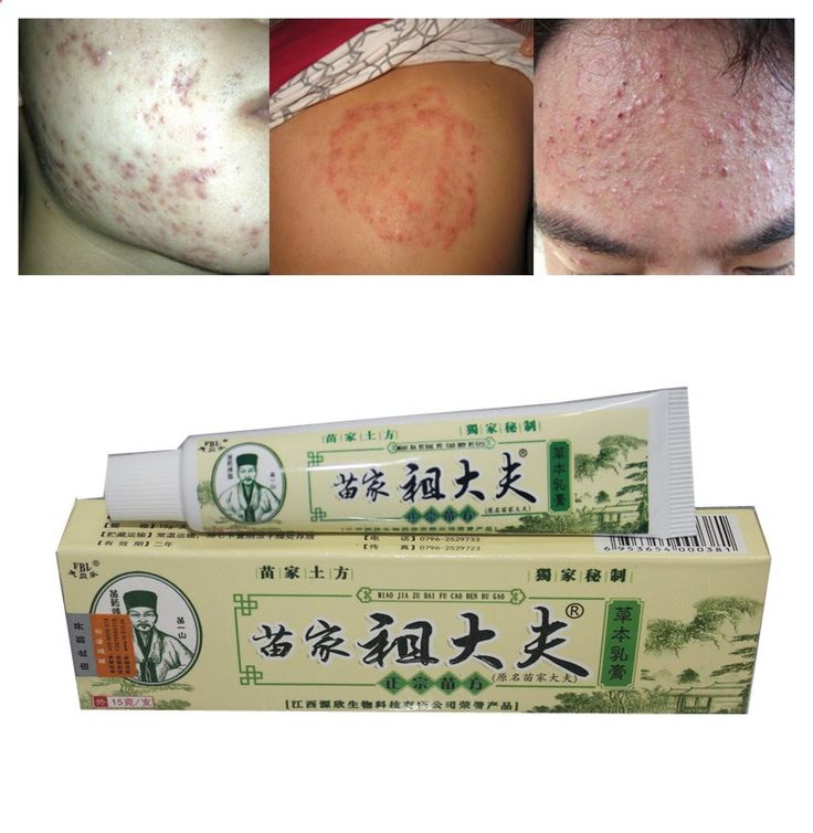 1Pcs Chinese Ointment for Eczema Tinea Dermatitis Tinea Corporis Psoriasis Itching Hemorrhoids Scabies Insect Bites Acne