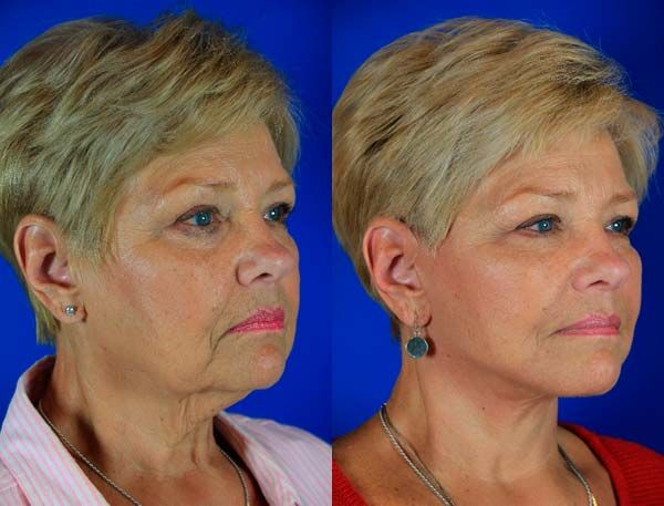 Glenda, 69 Before and After Facelift / Reflection Lift Before and After Fat Transfer