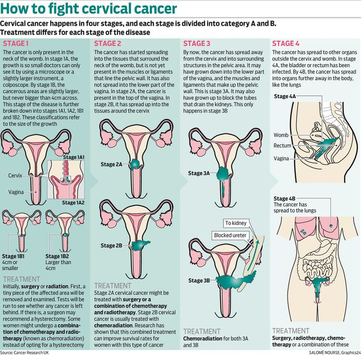 cervical cancer stage 1b2 - Google Search