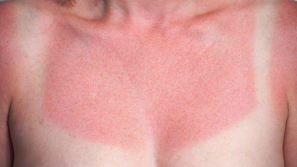 Prirodni lijek: Najbolja rešenja protiv opekotina od sunca