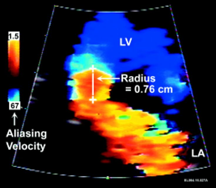Pisa In Echocardiography | Quantitation of mitral regurgitation: rationale, approach, and ...