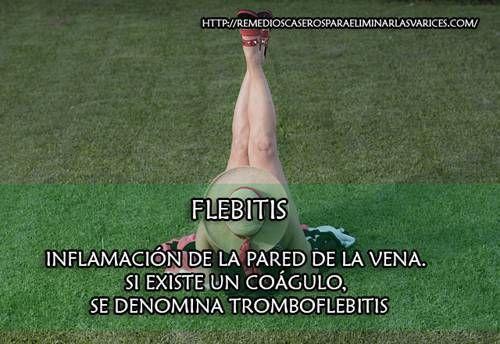 Flebitis: Tipos, Síntomas, Causas, Tratamientos, Prevención