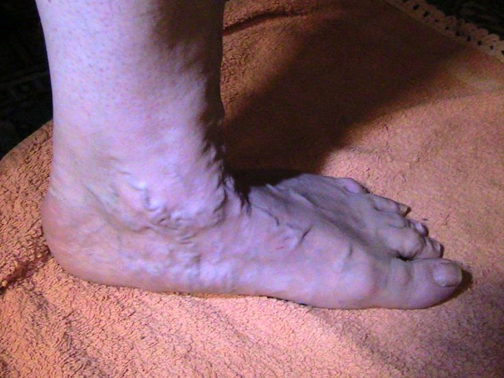 Kuvassa lattajalka: sisempi jalkakaari laskeutuu täysin alustaa vasten. Jalkojen terveydenhoitoon syventynyt lähihoitaja ohjaa madaltuneiden jalkakaarien kohdennettua jalkavoimistelua.
