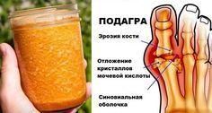 Попрощайтесь с подагрой навсегда с помощью этого мощного природного лечения