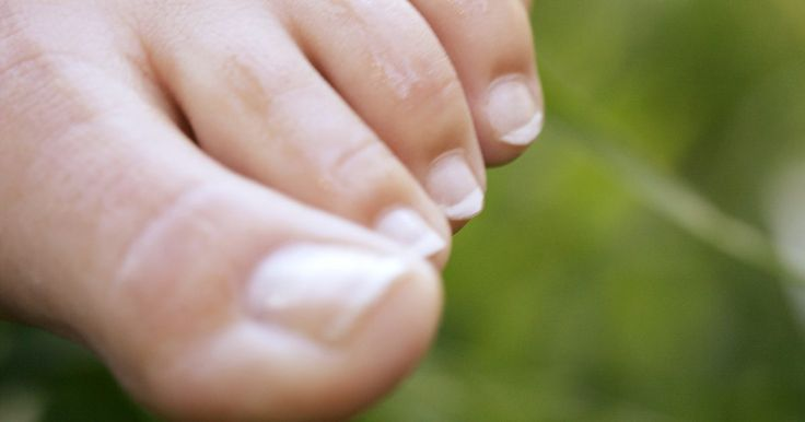 Como eliminar os pelos dos dedos dos pés. É impensável usar um lindo par de sandálias ou chinelos se tiver pelos nos dedos dos pés. Se você tem esse problema, provavelmente não queira usar sapatos abertos ou andar de pés descalços na piscina, praia ou outros locais públicos. E esse não é um problema exclusivo dos homens, acontece com mulheres também. Ao invés de deixar alguns fios ...
