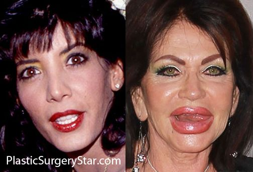 sylvester stallone before plastic surgery | Jackie Stallone Plastic Surgery (Before After Lips)