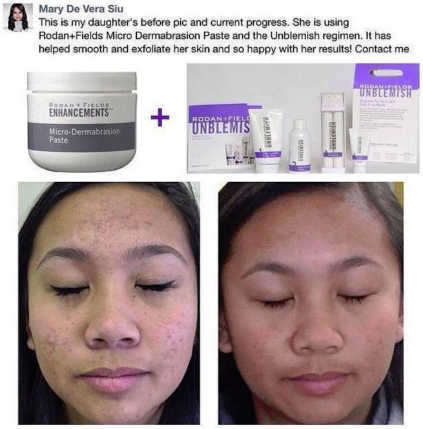 #1 premium acne brand in the US! #acne #acneremedy #acnetreatment #blackeads #rodanandfields