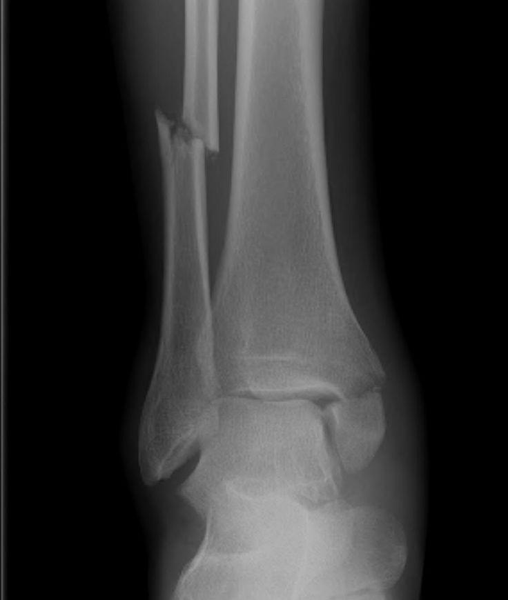 Ankle Fracture Bimalleolar