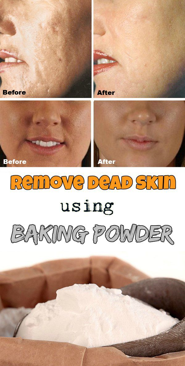 Remove dead skin using baking powder